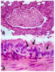 Staupe Virus Hund unter dem Mikroskop